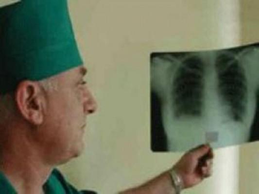 В Беларуси растет уровень распространения мультирезистентных форм туберкулеза