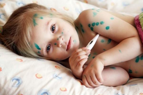 Вакцина от ветряной оспы ожидается в Минске в августе
